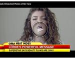 Lorde is Smartte